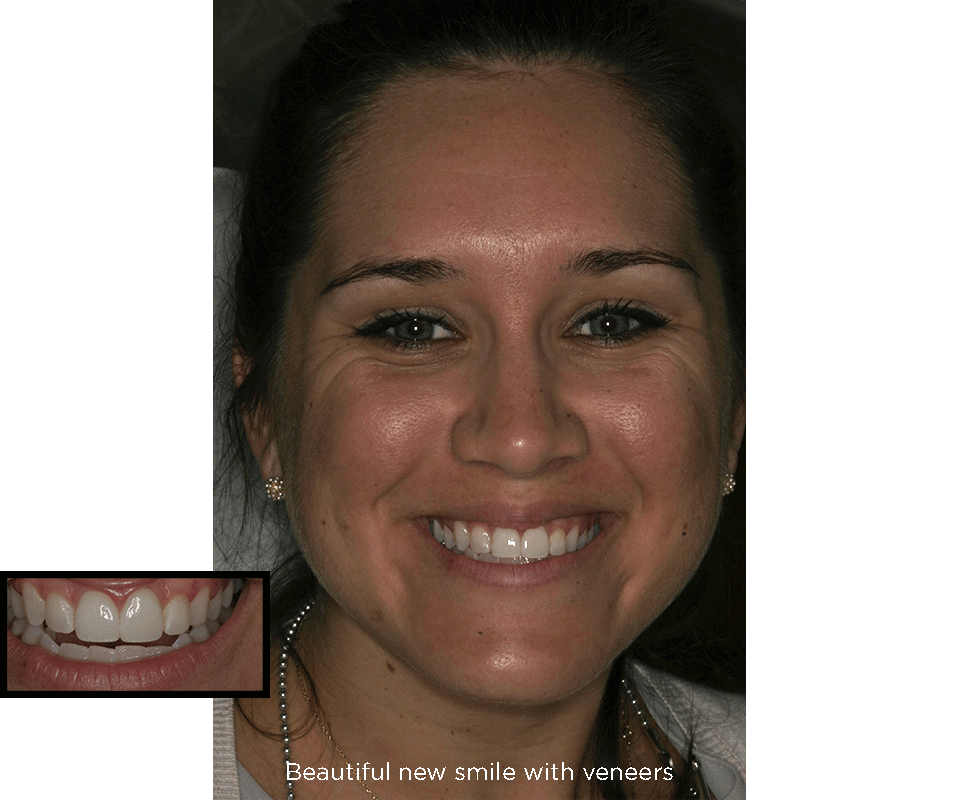 chipped front teeth after porcelain veneers treatments