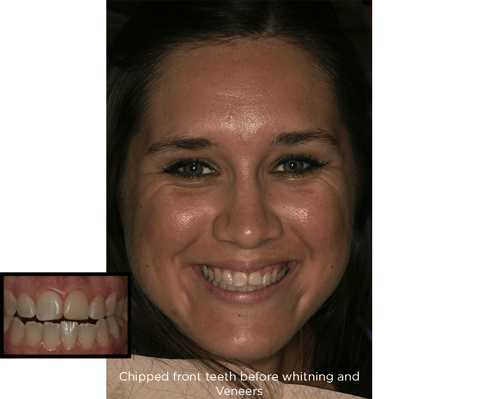 chipped front teeth before porcelain veneers treatments