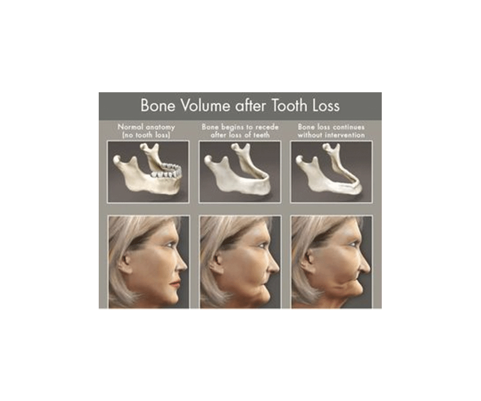 implats bone volum after tooth loss