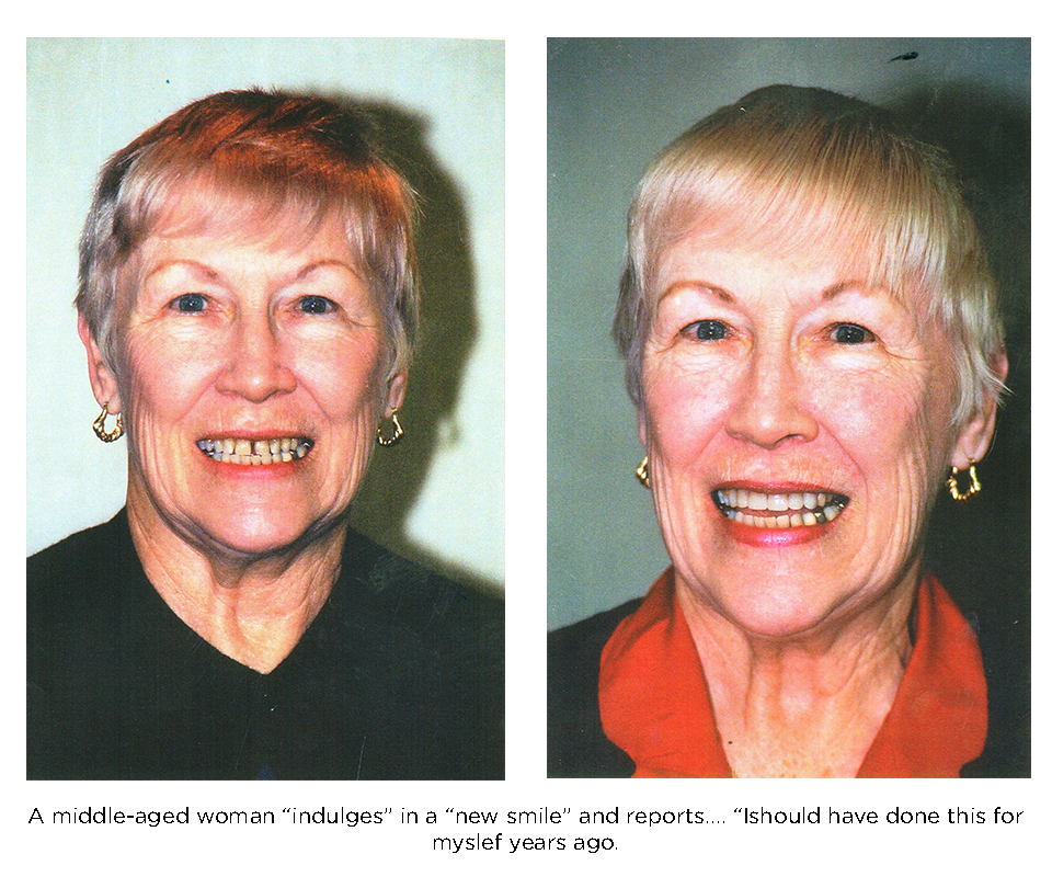 Middle aged woman with a beautiful new smile thanks to the use of porcelain veneers
