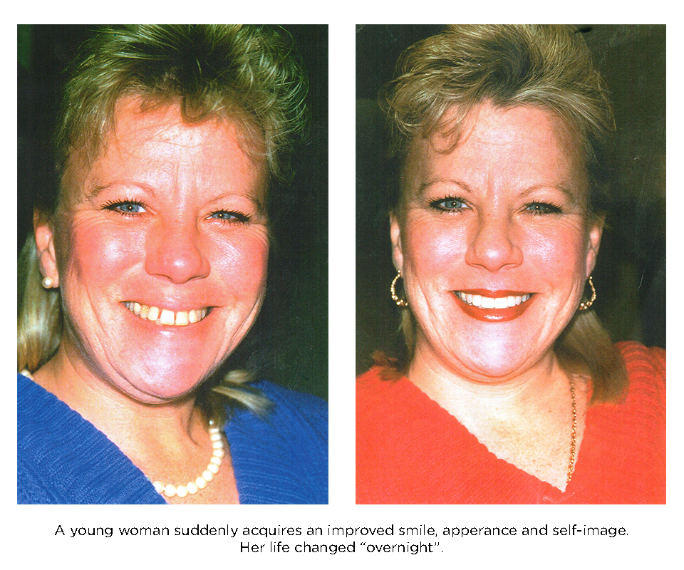 porcelain veneers smile makeover. A young woman suddenly acquieres a new smile